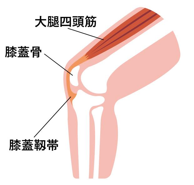 曲げる 痛い 膝 突然 と 突然急に、いきなり発生する変形性膝関節症や膝の痛み
