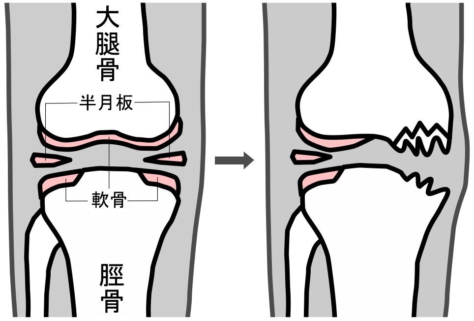 正常な膝関節(左)が、長期間の負担が加わることにより異常を生じるようになる(右)